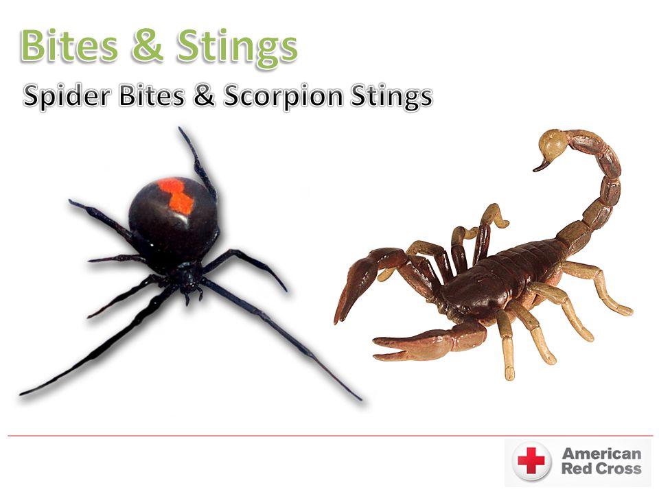 Bites & Stings Spider Bites & Scorpion Stings