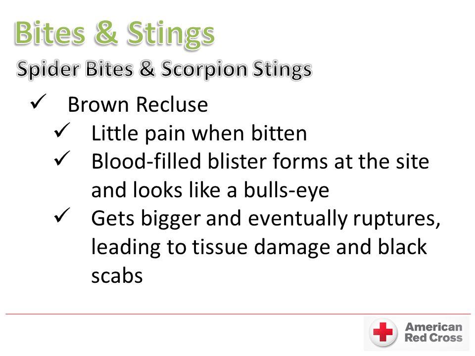 Bites & Stings Spider Bites & Scorpion Stings Brown Recluse
