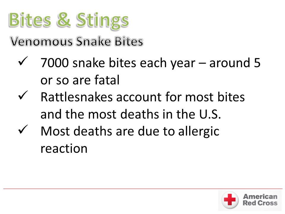 Bites & Stings Venomous Snake Bites
