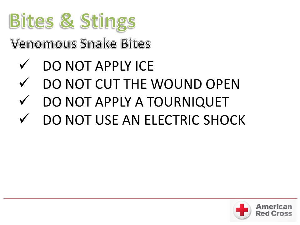Bites & Stings Venomous Snake Bites DO NOT APPLY ICE