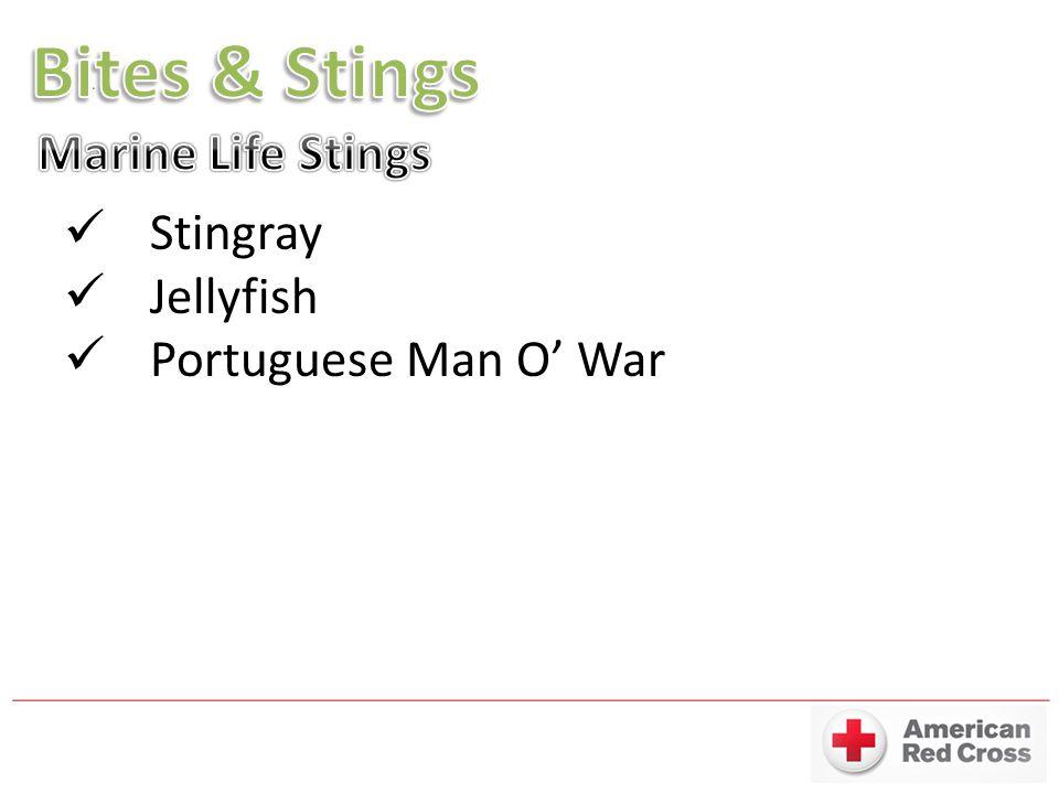 Bites & Stings Marine Life Stings Stingray Jellyfish