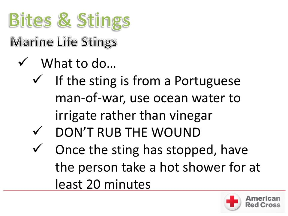 Bites & Stings Marine Life Stings What to do…