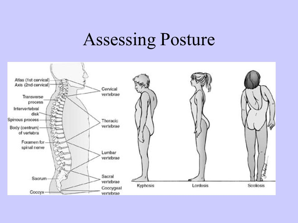 Assessing Posture