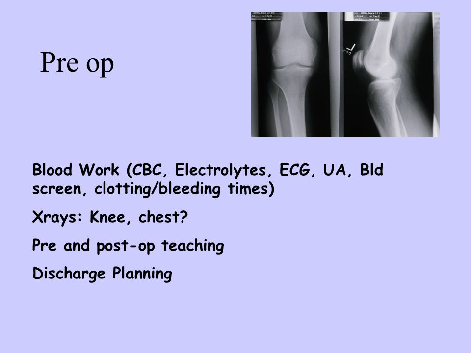 Pre op Blood Work (CBC, Electrolytes, ECG, UA, Bld screen, clotting/bleeding times) Xrays: Knee, chest