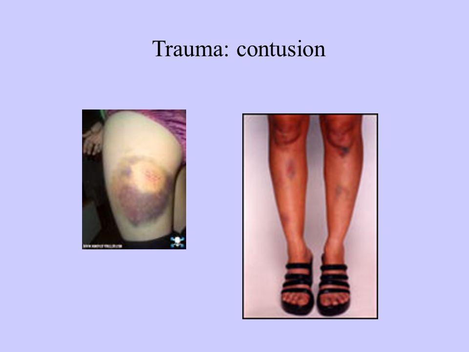 Trauma: contusion