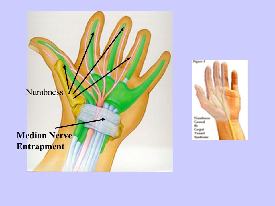 Numbness Median Nerve Entrapment