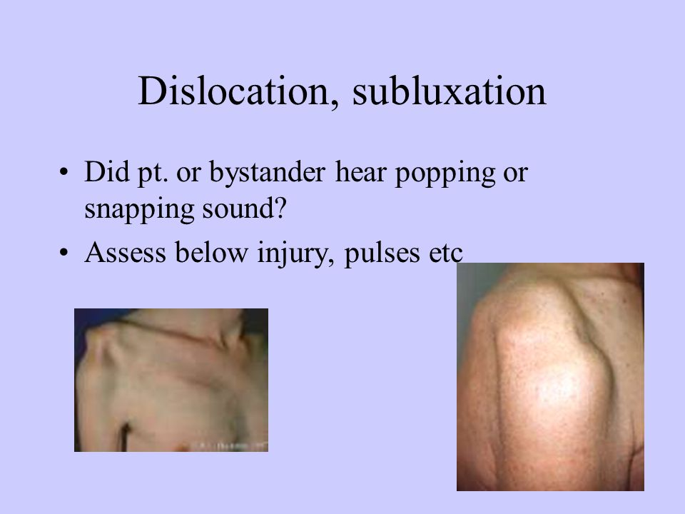 Dislocation, subluxation