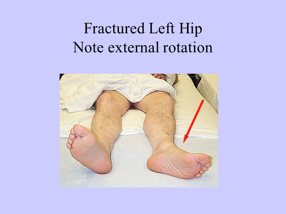 Fractured Left Hip Note external rotation