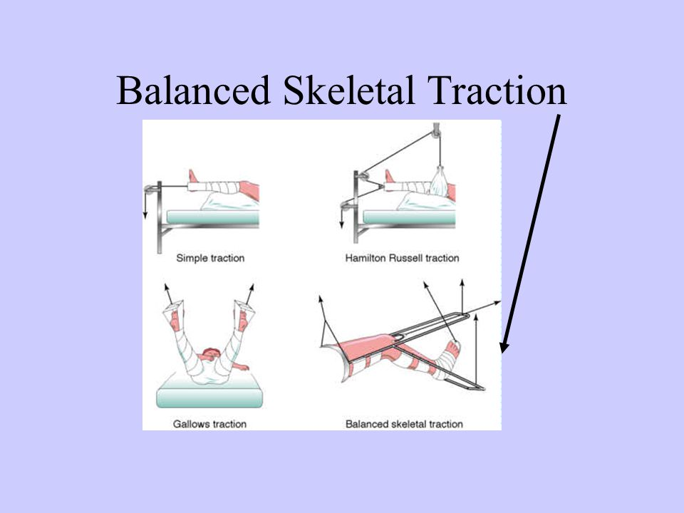 Balanced Skeletal Traction
