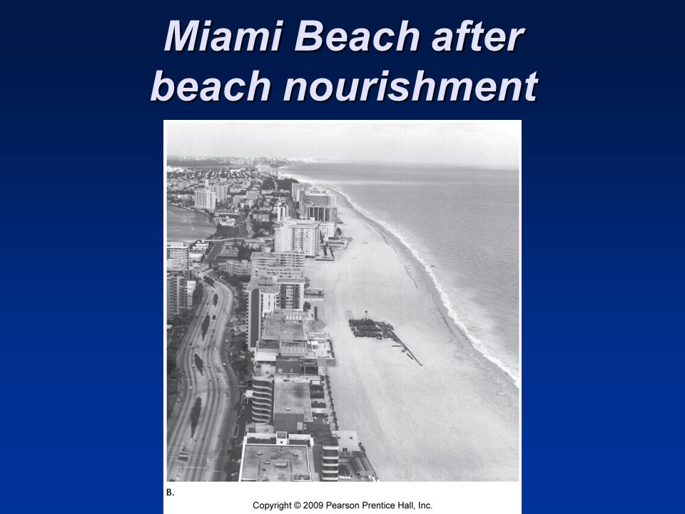 Miami Beach after beach nourishment