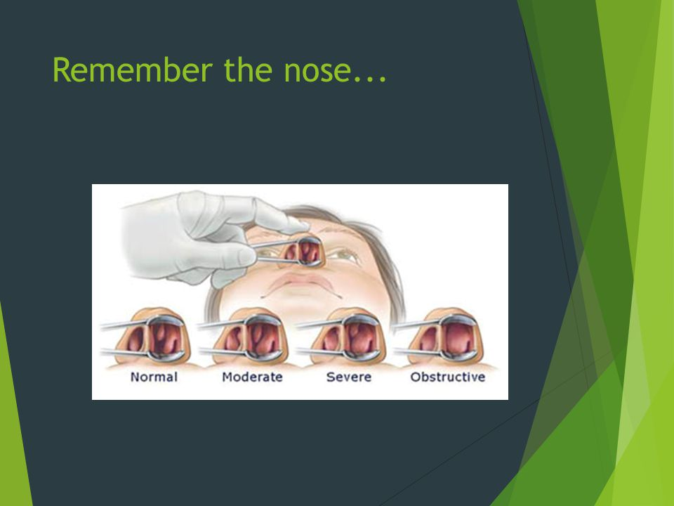 Remember the nose...