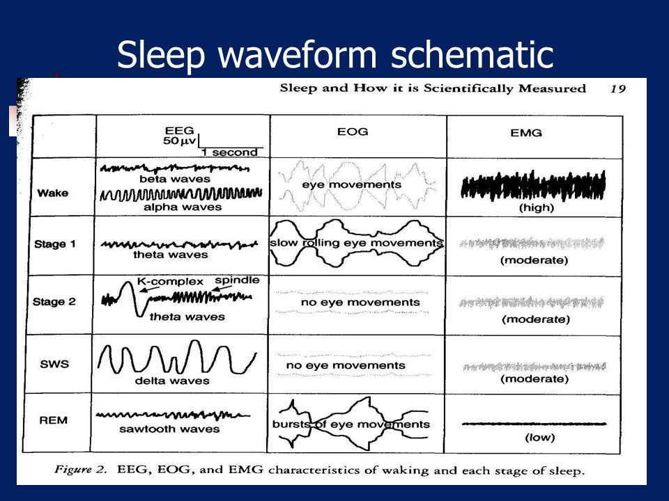 Sleep waveform schematic