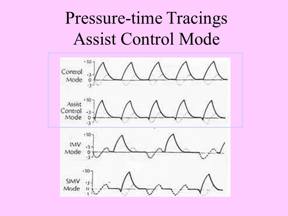 Pressure-time Tracings Assist Control Mode