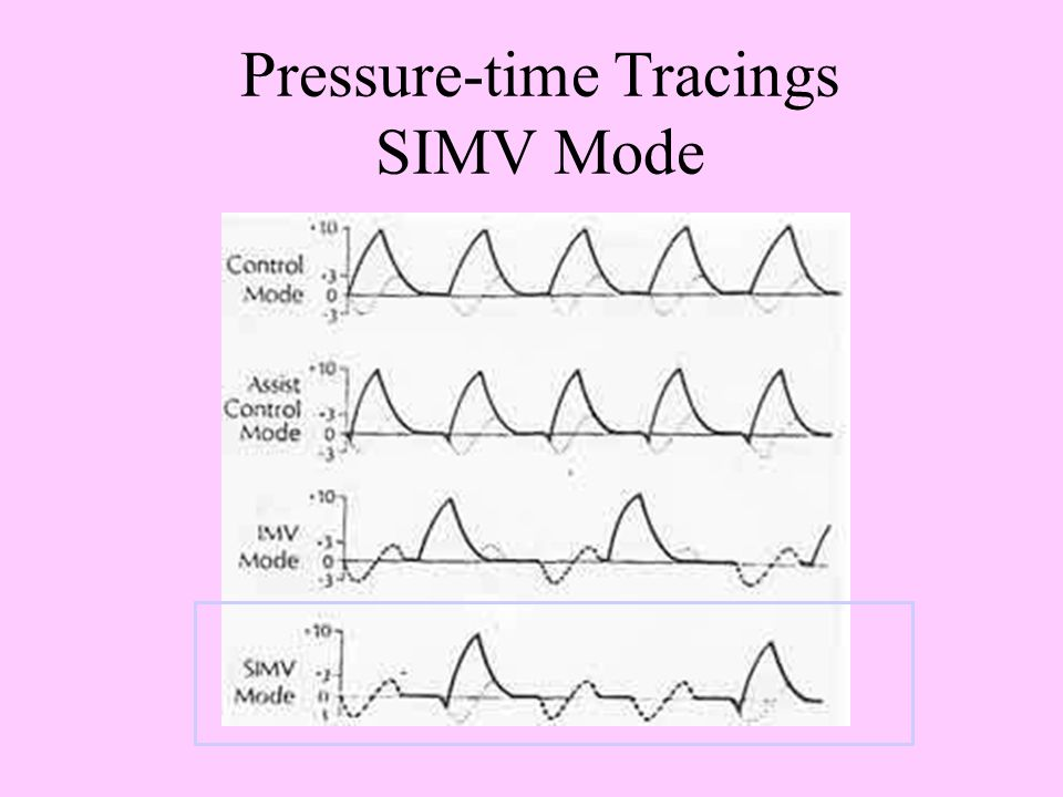 Pressure-time Tracings SIMV Mode