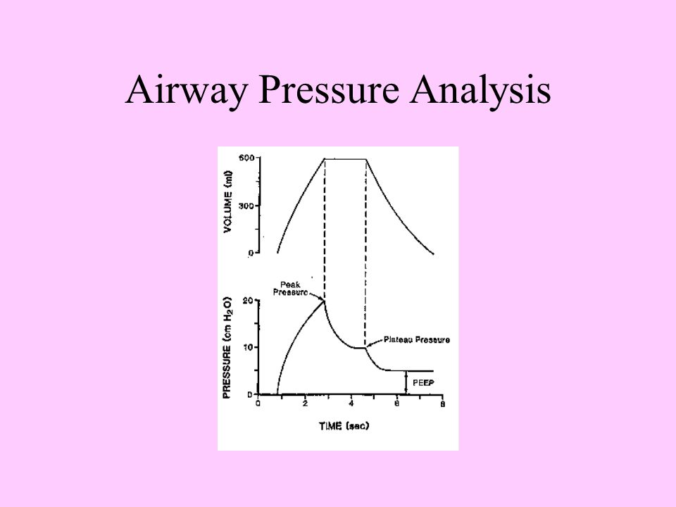 Airway Pressure Analysis
