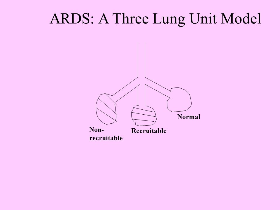 ARDS: A Three Lung Unit Model