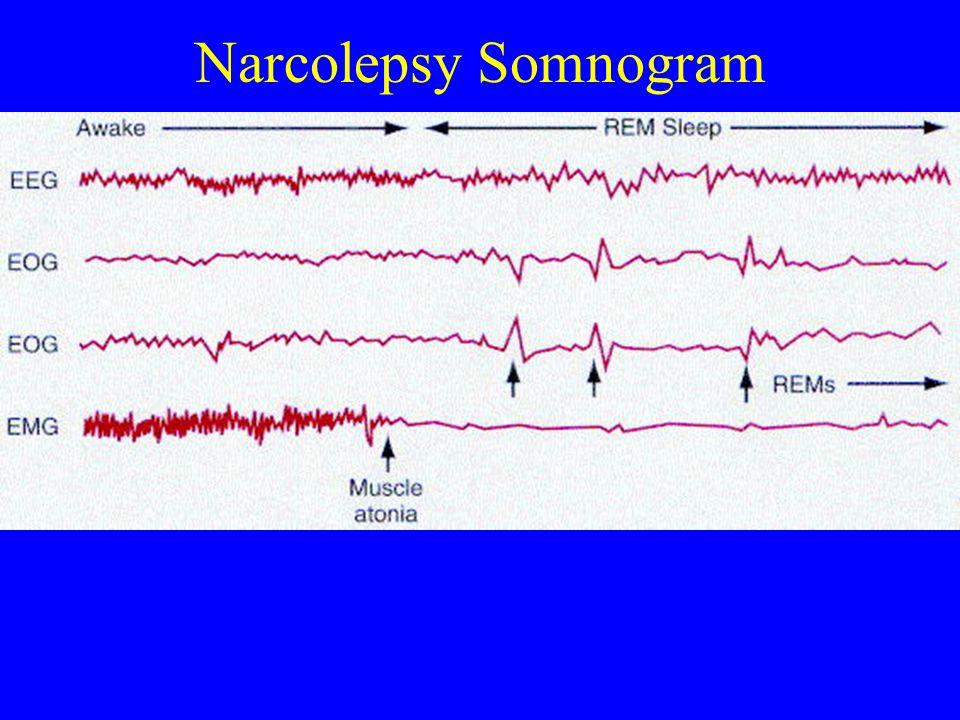 Narcolepsy Somnogram
