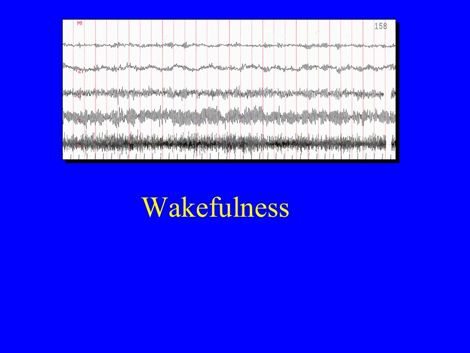 Wakefulness EOG (LOC) EOG (ROC) EEG (C3-A2) EEG (O1-A2)