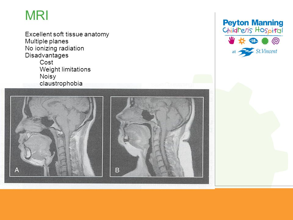 MRI Excellent soft tissue anatomy Multiple planes