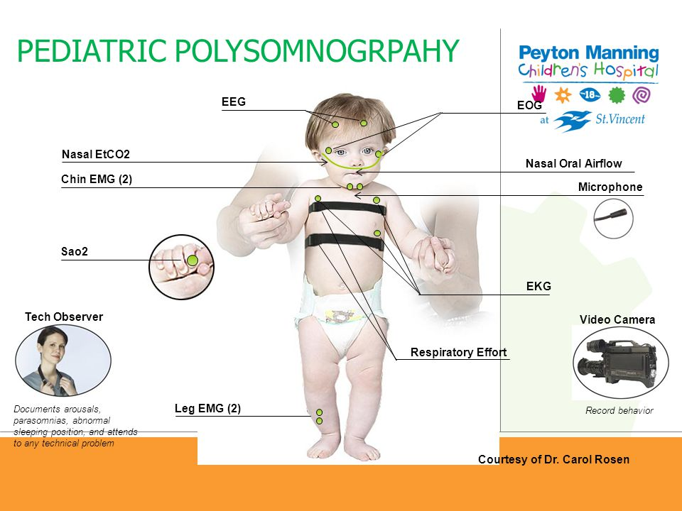 PEDIATRIC POLYSOMNOGRPAHY