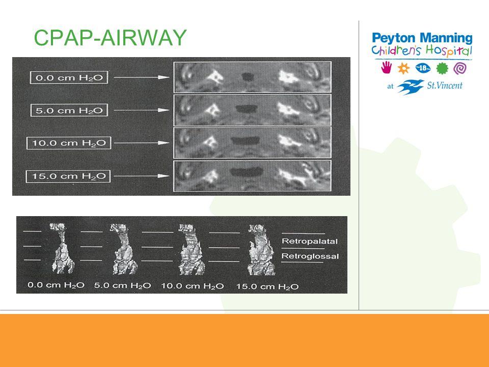 CPAP-AIRWAY