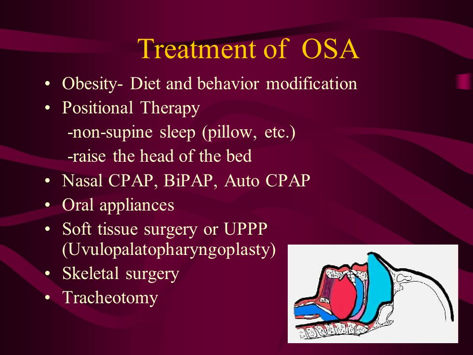 Treatment of OSA Obesity- Diet and behavior modification