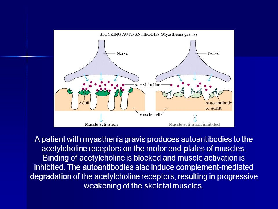 A patient with myasthenia gravis produces autoantibodies to the acetylcholine receptors on the motor end-plates of muscles.