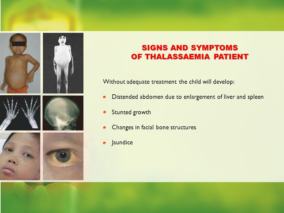 OF THALASSAEMIA PATIENT SIGNS AND SYMPTOMS OF THALASSAEMIA PATIENT