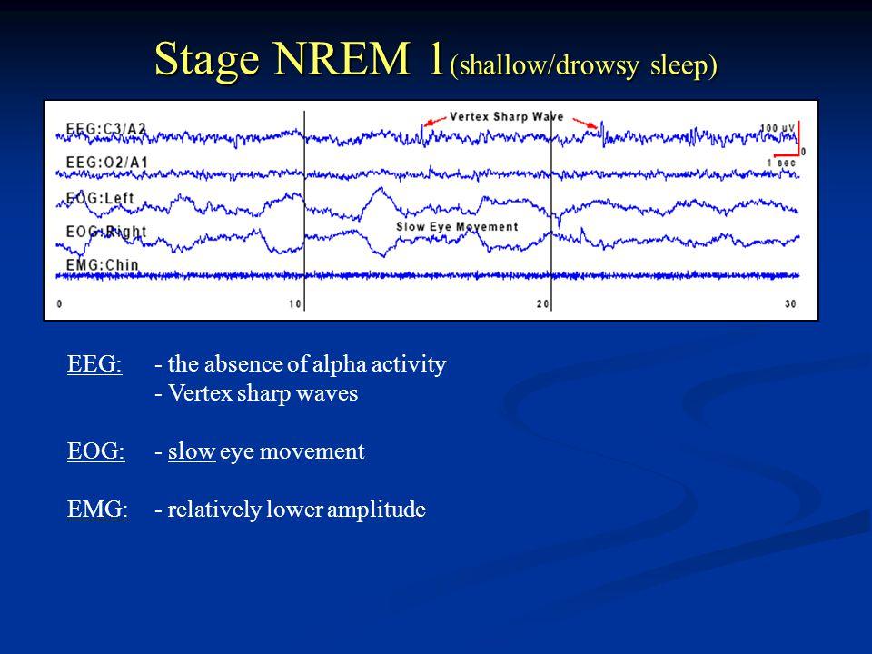 Stage NREM 1(shallow/drowsy sleep)