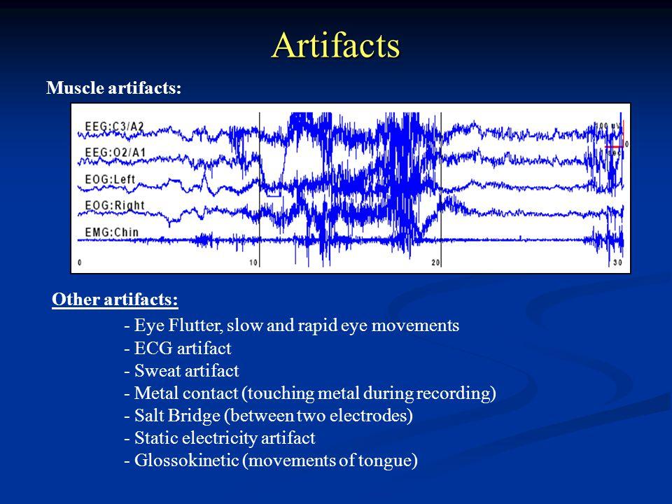 Artifacts Muscle artifacts: Other artifacts: - ECG artifact