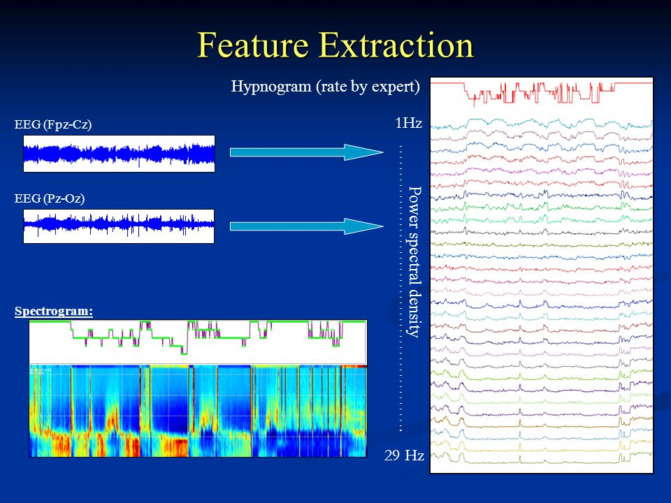 Feature Extraction Hypnogram (rate by expert) 1Hz …………………………………………….