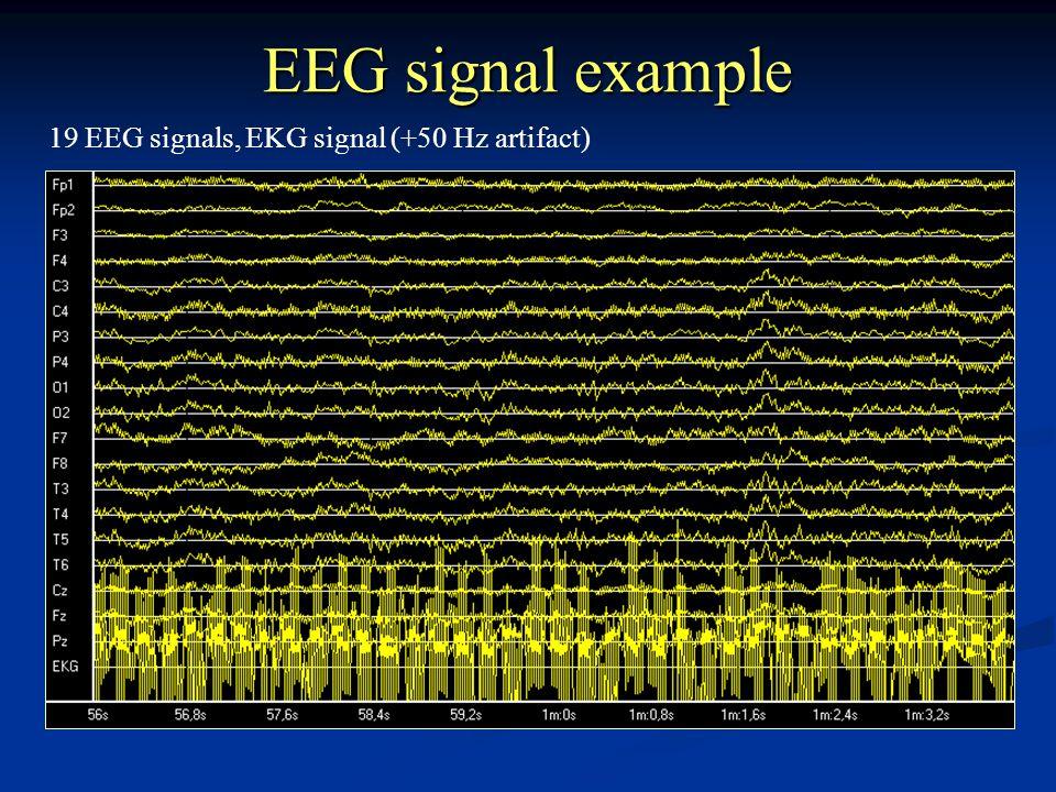 EEG signal example 19 EEG signals, EKG signal (+50 Hz artifact)