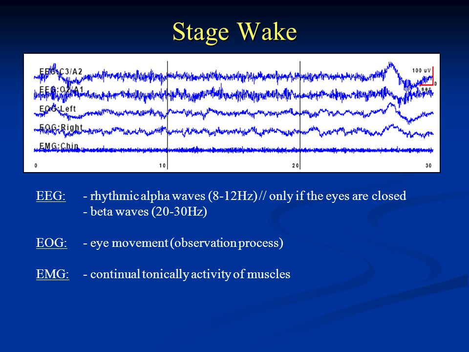 Stage Wake EEG: - rhythmic alpha waves (8-12Hz) // only if the eyes are closed. - beta waves (20-30Hz)