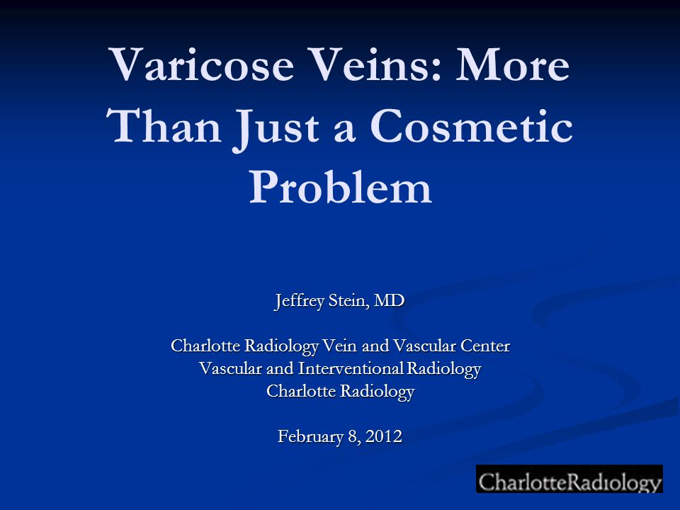 Varicose Veins: More Than Just a Cosmetic Problem