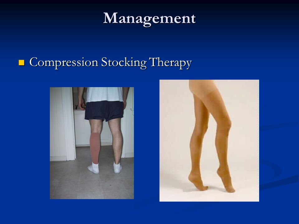 Management Compression Stocking Therapy