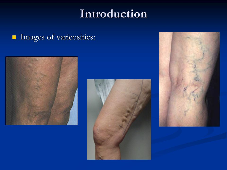 Introduction Images of varicosities: