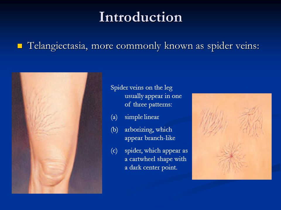 Introduction Telangiectasia, more commonly known as spider veins:
