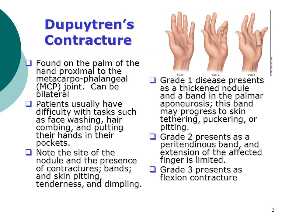 Dupuytren's Contracture - ppt video online download