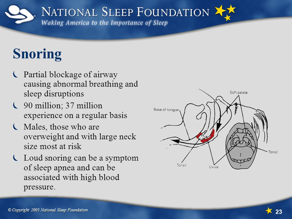 Snoring Partial blockage of airway causing abnormal breathing and sleep disruptions. 90 million; 37 million experience on a regular basis.