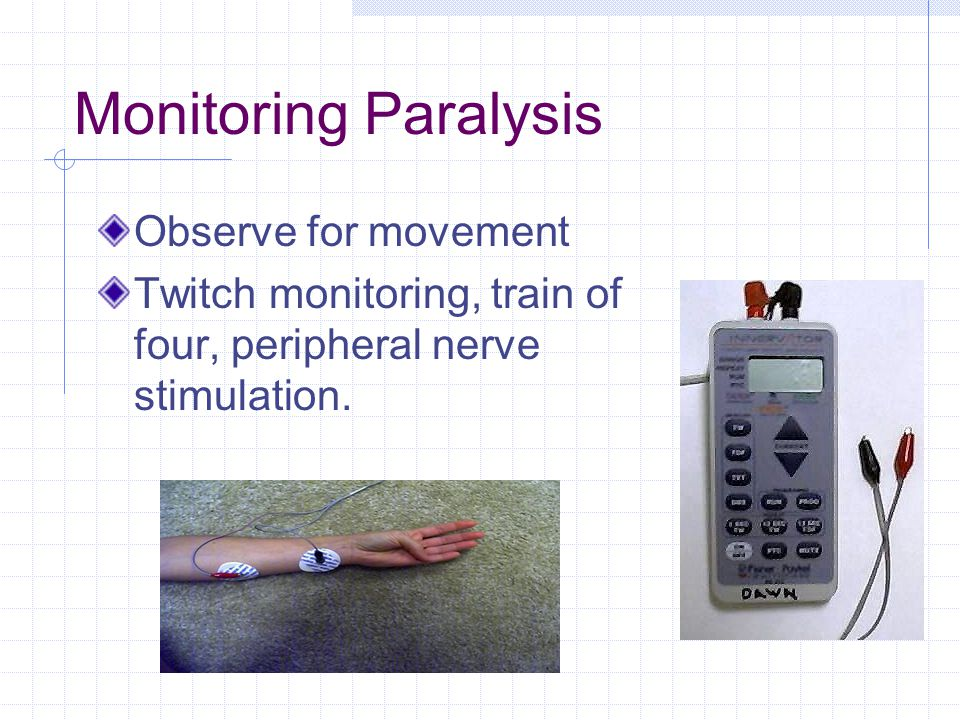 Monitoring Paralysis Observe for movement