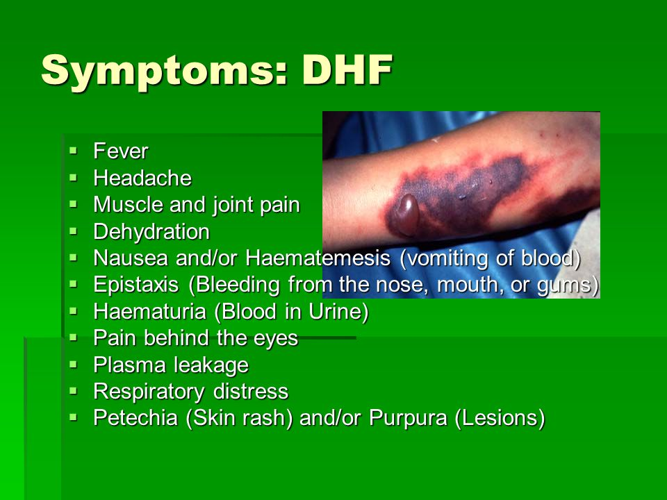 Symptoms: DHF Fever Headache Muscle and joint pain Dehydration