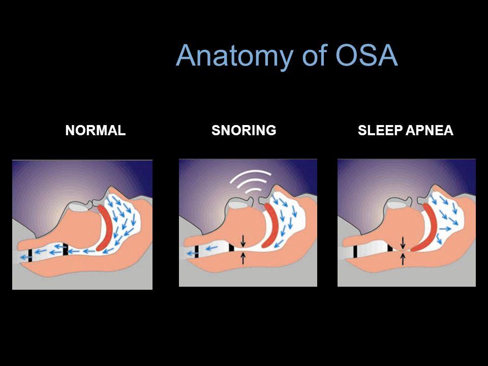 Anatomy of OSA NORMAL SNORING SLEEP APNEA