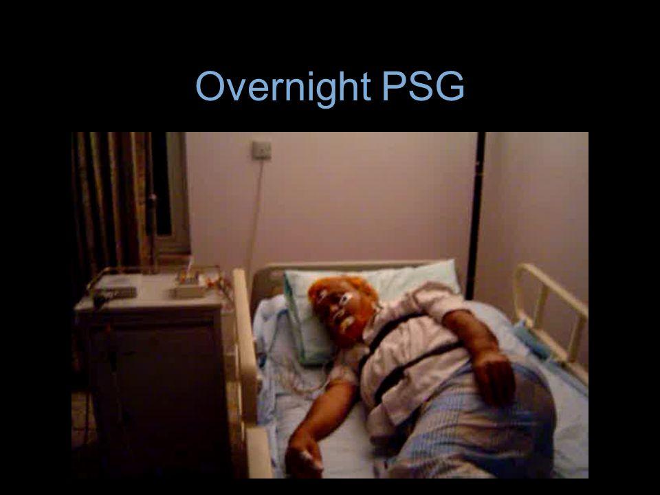 Overnight PSG