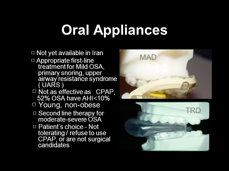 Oral Appliances MAD □ Not as effective as CPAP, TRD