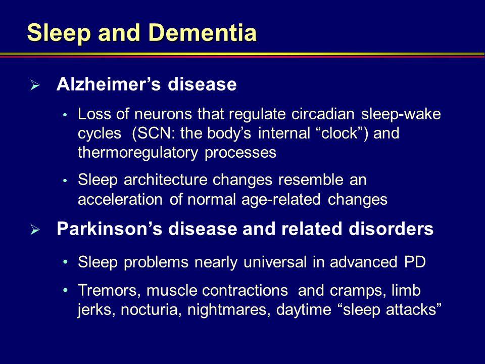Sleep and Dementia Alzheimer's disease