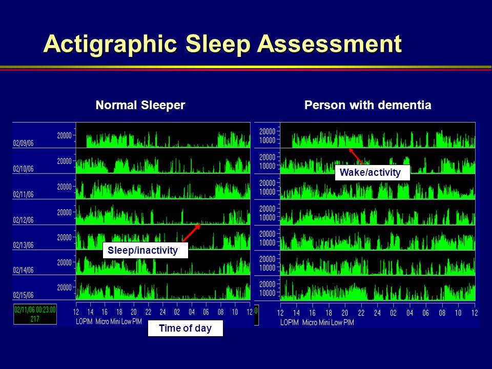 Actigraphic Sleep Assessment