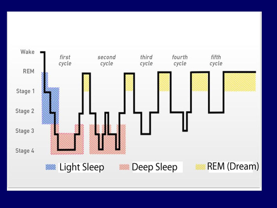 Typical young adult. 25% rapid eye movement (REM) sleep, 75% Non-REM sleep (5% Stage 1, 45% Stage 2, 25% Stages 3-4)