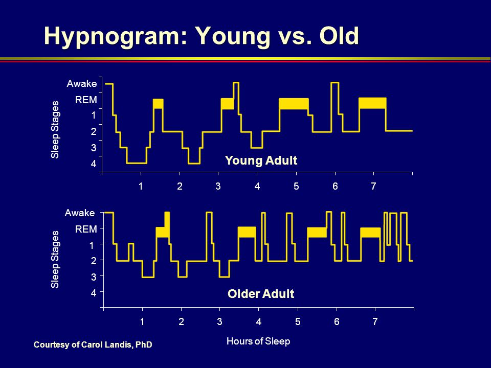 Hypnogram: Young vs. Old