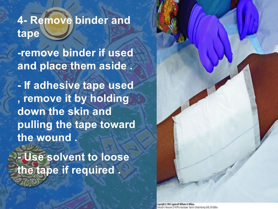 4- Remove binder and tape