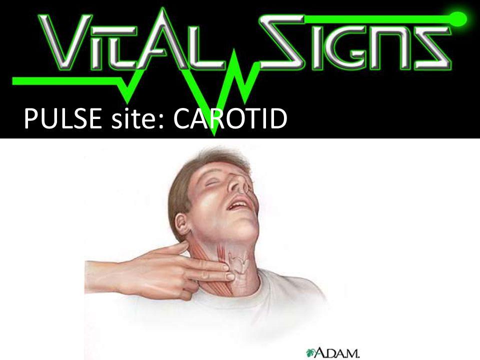 PULSE site: CAROTID